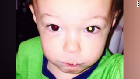 pkg illinois toddler eye cancer_00005613.jpg