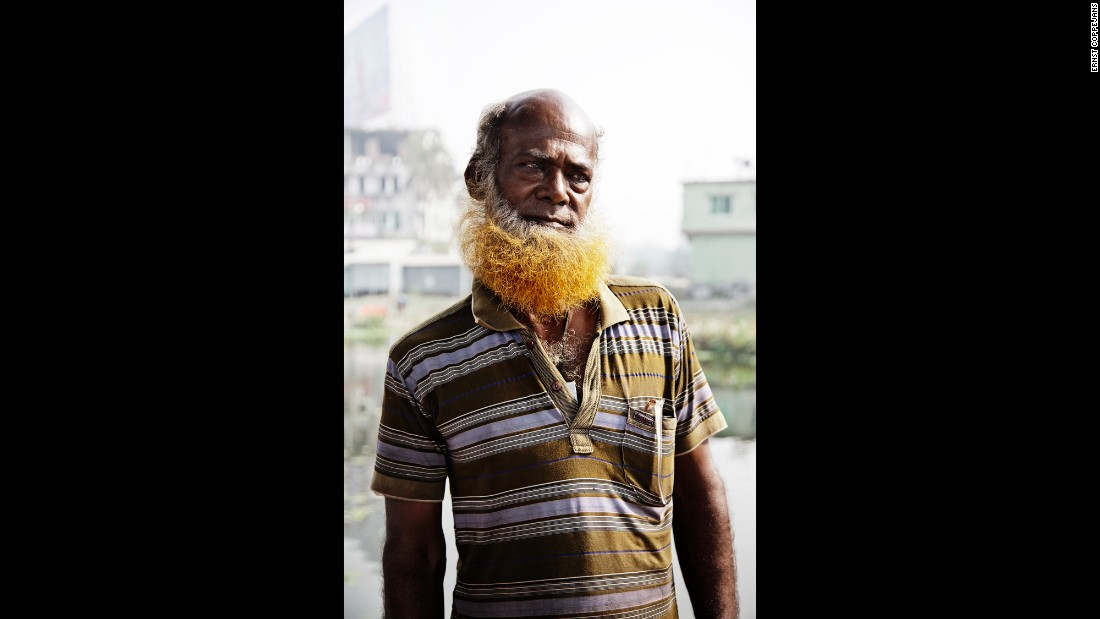 When he first arrived in Bangladesh, photographer Ernst Coppejans saw it everywhere: men who had dyed their hair or their facial hair orange.