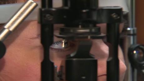 pkg bionic lens promises perfect vision_00002709