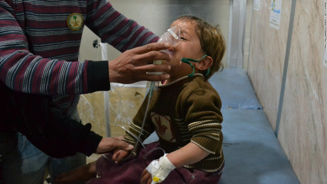 A Syrian boy receives treatment at a local hospital following an alleged chlorine gas attack in the Idlib suburb of Jabal al-Zawia on April 27, 2015.