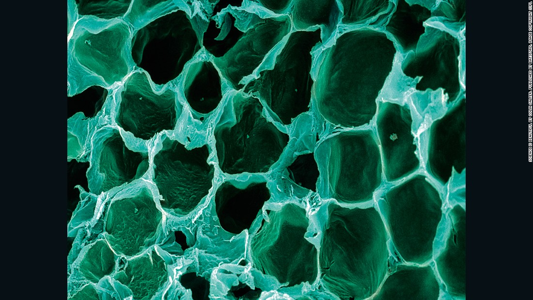 Fat cells are amongst the largest cells in the human body. They form a thick insulating layer under the skin which serves to cushion us as well as store energy. In this image the normal lipid (fat) deposits of the cells (their major component) have been removed, revealing the honeycomb structure of the cell membranes. When we put on weight, the cells swell with additional fat, and eventually extra cells are added too.