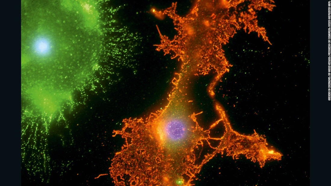 This image shows two important support cells (glial cells) of the human brain. The green splash is a microglial cell, which responds to immune reactions in the central nervous system. <br /><br />Microglial cells recognize areas of damage and inflammation and swallow cellular debris. The larger orange shape is an oligodendrocyte. The ragged extensions of an oligodendrocyte can supply many neurons (nerve cells) with myelin, an insulating material which allows each neuron's communicating axon to transmit electrical impulses efficiently.