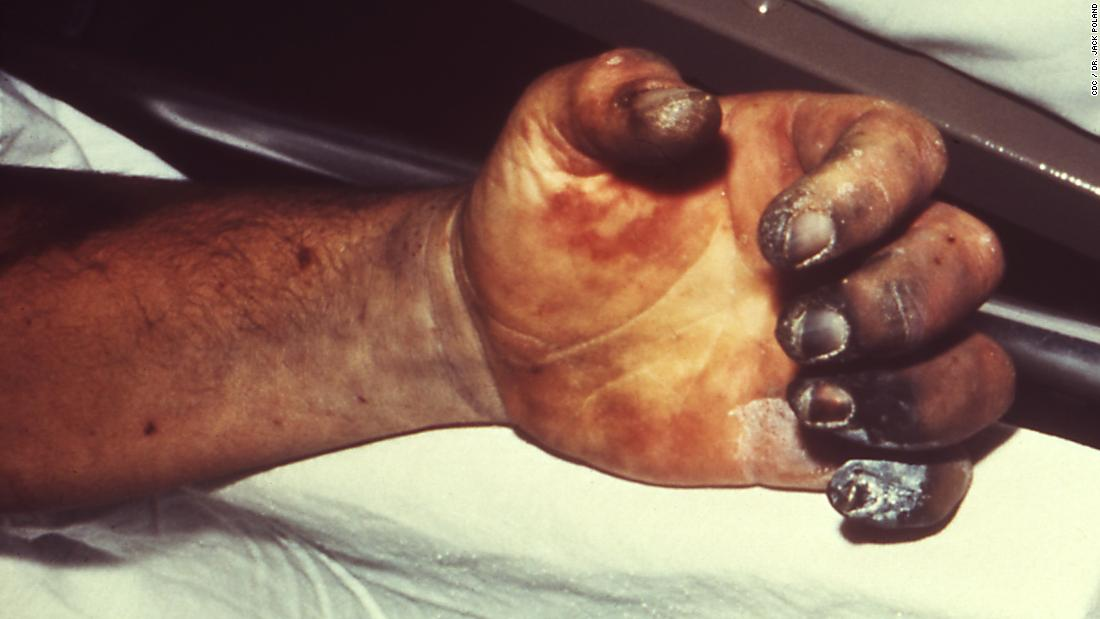 Though it's often thought of as a medieval disease, the WHO reports 1,000 to 3,000 global cases of plague every year. Pictured, a patient with gangrene and necrosis, caused by plague.<br />