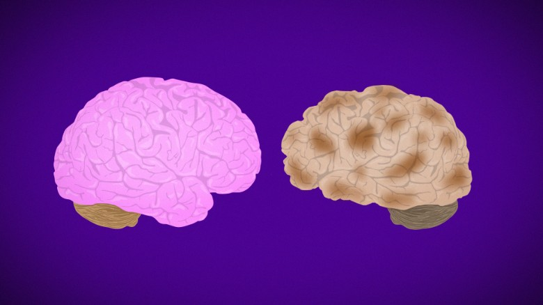 How Alzheimer's destroys the brain