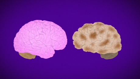 Alzheimer's Disease Fast Facts