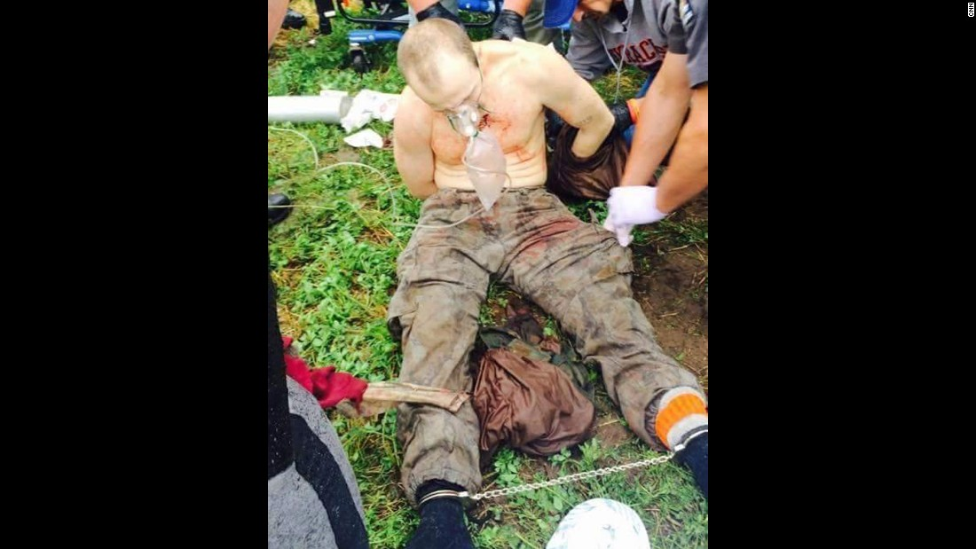 Sweat is bloodied, shirtless and cuffed at the ankles, and he appears to be breathing into an oxygen mask after his capture on June 28.