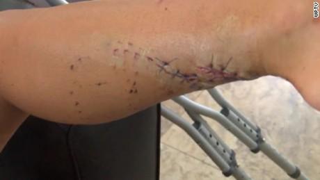 shark attack in bahamas pkg_00004720
