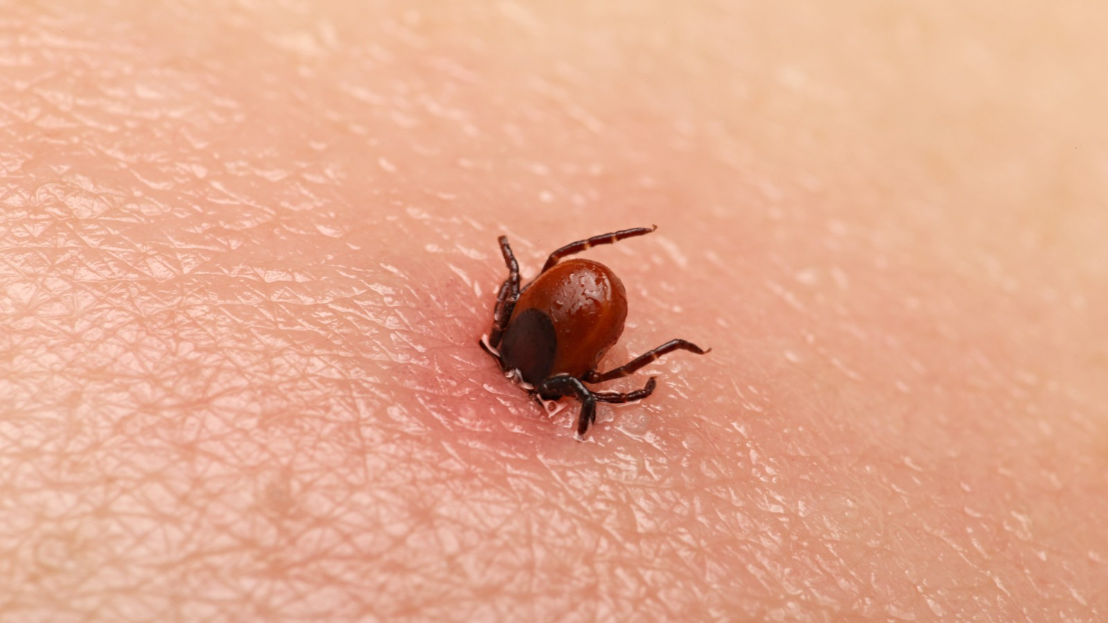 What you need to know about ticks