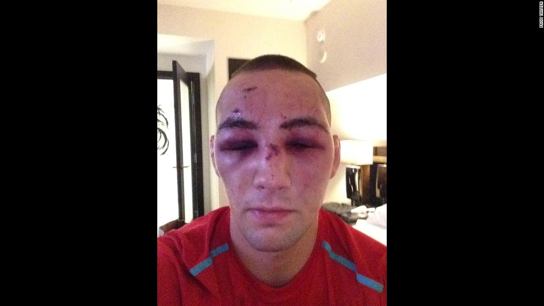 "A bruised and battered Rory MacDonald <a href=""https://twitter.com/rory_macdonald/status/620276950766981121"" target=""_blank"">tweeted this selfie</a> on Sunday, July 12, a day after he lost a UFC title match on Saturday, July 11. ""Broken nose broken foot but ill be back,"" he said."