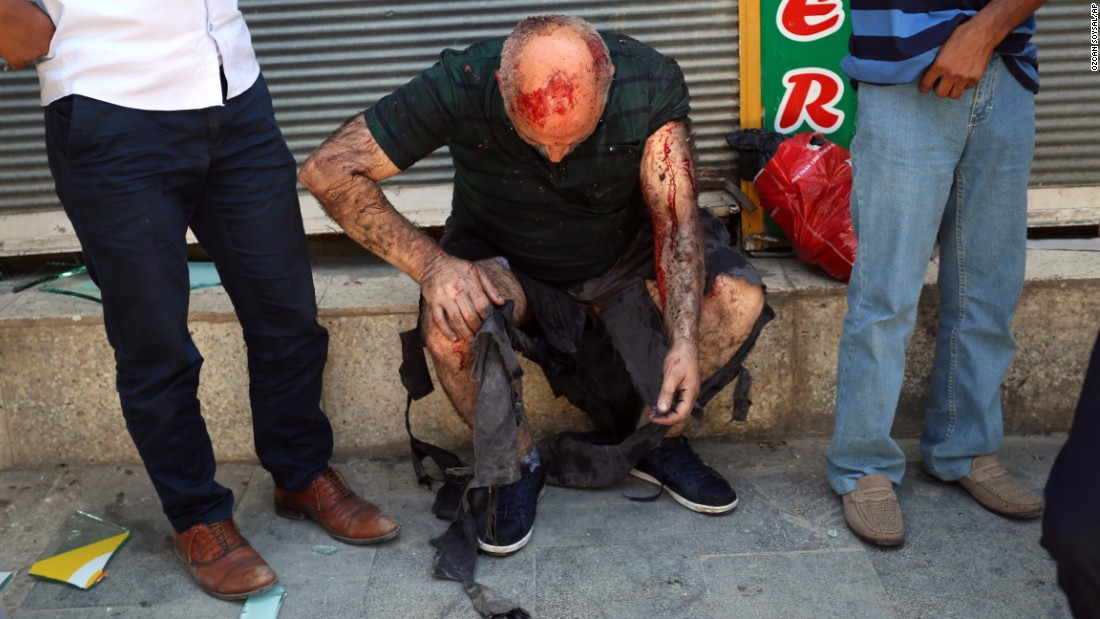 A wounded man waits for medical attention after the explosion.
