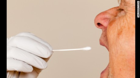 New saliva test may catch Alzheimer's disease early
