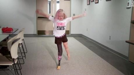 prosthetic leg water park oklahoma_00000816