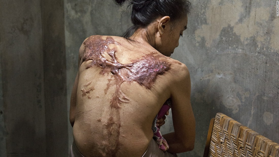 """I go to the clinic regularly to get medication. Now it is not painful any more. It was most painful the first four months."" Sumasri's back and thighs are heavily scarred from the boiling water she said her male employer in Kuala Lumpur threw on her. The story of what exactly happened to her often changes when she recounts it."