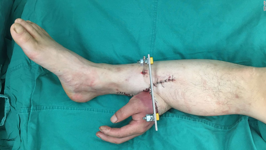 A man in China, identified as Mr. Zhou, lost his left hand in an industrial accident. It was grafted to his lower calf and connected to blood vessels in the region to keep the tissue alive.