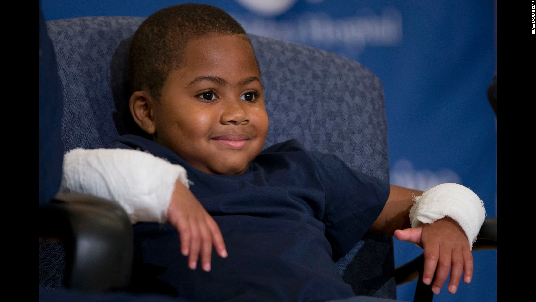 "Zion Harvey, an 8-year-old boy <a href=""http://www.cnn.com/2015/07/29/us/baltimore-boy-zion-harvey-first-double-hand-transplant-recipients/"" target=""_blank"">who received a double hand transplant,</a> smiles during a news conference Tuesday, July 28, in Philadelphia. The 10-hour surgery required 12 surgeons and was the first of its kind to be performed on a child."