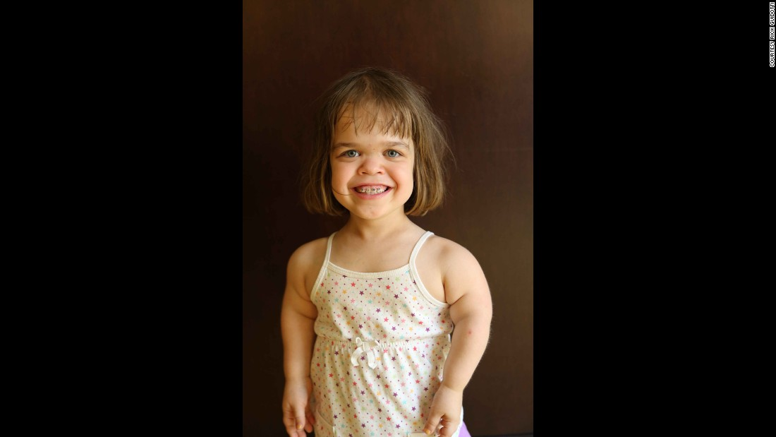 "Irina, in her own words: ""I was born in Russia. I was put in an orphanage when I was 4 days old. My mom and dad adopted me when I was five, now I live in Maine. I have two younger sisters. I have achondroplasia, which is the most common form of dwarfism. My bones just don't grow as fast as the average kids, so I'm short. I like Spider-Man, Batman, pirates and trucks. I like to ride my bike and play basketball."""