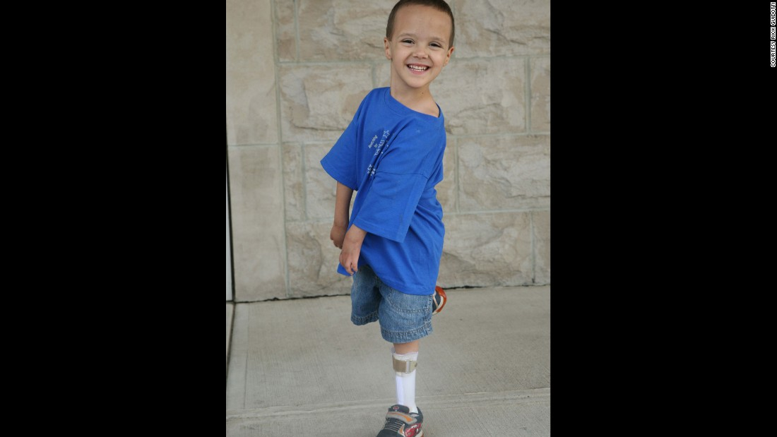 PJ, living with arthrogryposis multiplex congenita, has trouble using his arms. But that doesn't keep him from teasing his brother. The disease results in decreased flexibility of joints.