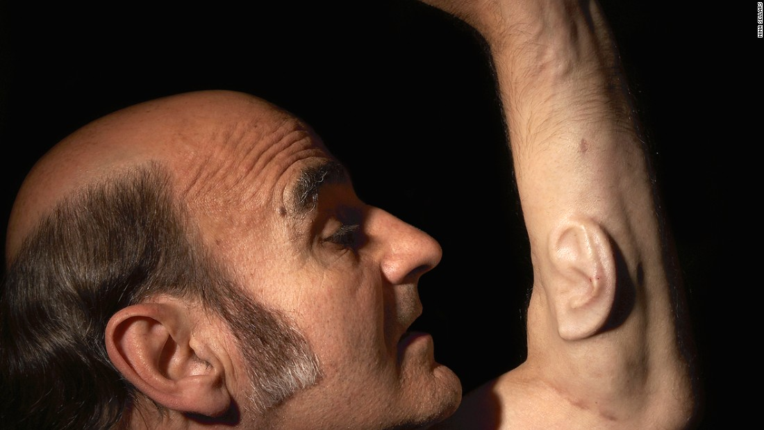 Other artists have also experimented in bio-art. Award-winning Australian performance artist Stelarc, for example, surgically implanted an ear into his arm.