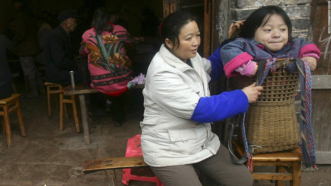 Experts believe that less time spent outdoors (sunlight is converted into vitamin D, a lack of which causes rickets) is behind rickets making a comeback in developed countries. Pictured, a 19-year-old girl in Neijiang, China, who is being carried in a basket because she has rickets.