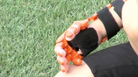 cnnee vo pitch hailey 3d printed robotic hand _00000026