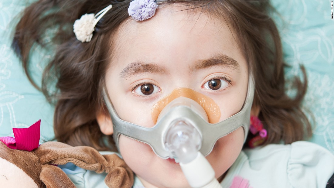 A pressurized mask pumps air into Julianna's lungs. An incurable neurodegnerative disease has attacked the nerves that control her muscles, including those that control her breathing.