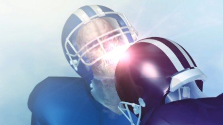Most ex-players in concussion study had a brain disease