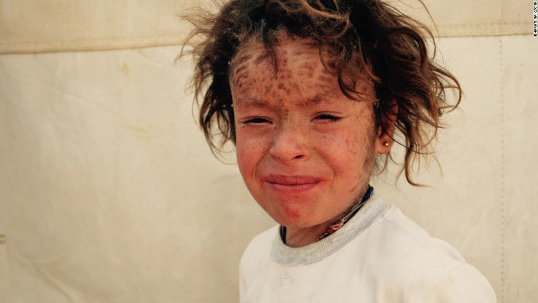 Marwa Khalil, who is eight years old, escaped from Sinjar with her family. She suffers from a skin disease and can't go to school because other children refuse to sit next to her. <br />