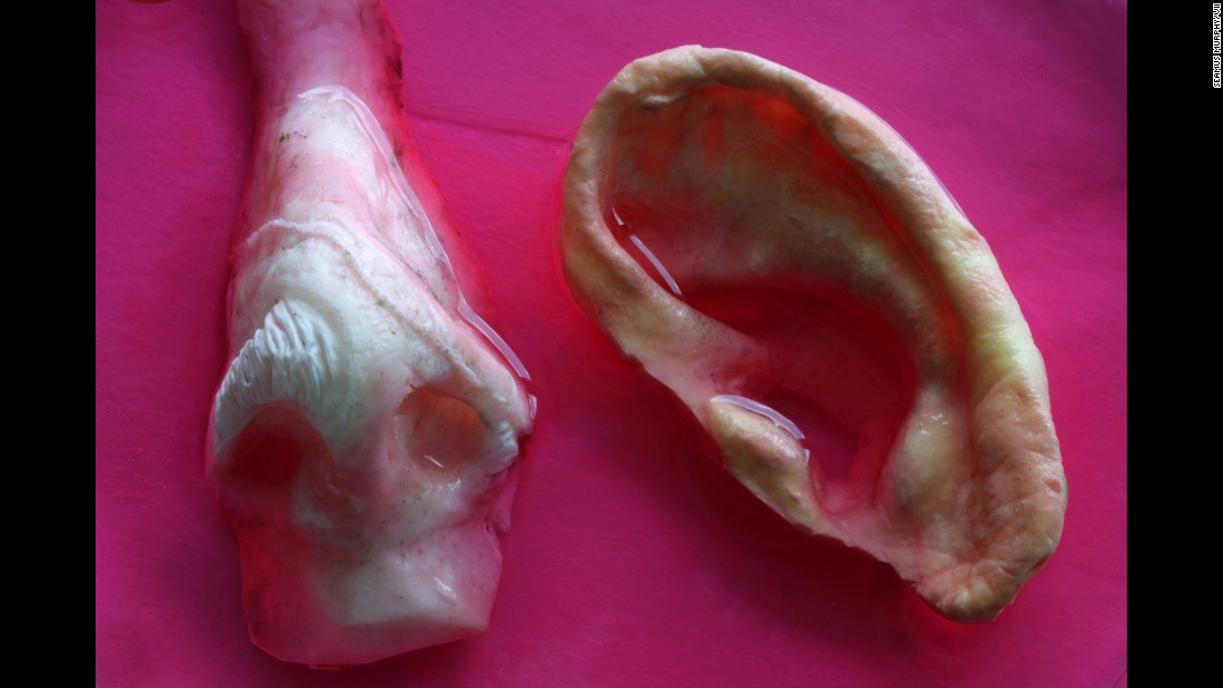 Nose and ear molds made of nanocomposite material seeded with cells in a cell solution.