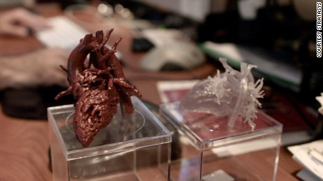 Mia's surgeon carried around a model of the girl's heart for weeks.
