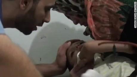 children syria violence damon dnt nr _00014921