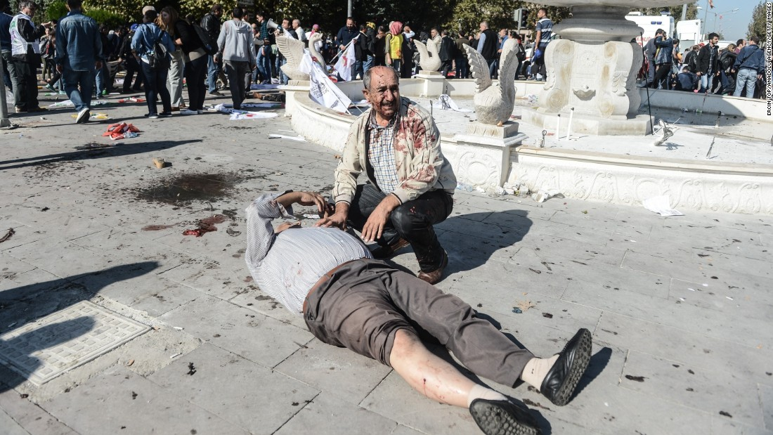 A wounded man lays on the ground at the site of an explosion in Ankara, Turkey, on Saturday, October 10. Two powerful bombs exploded near the main train station in Ankara on Saturday morning.