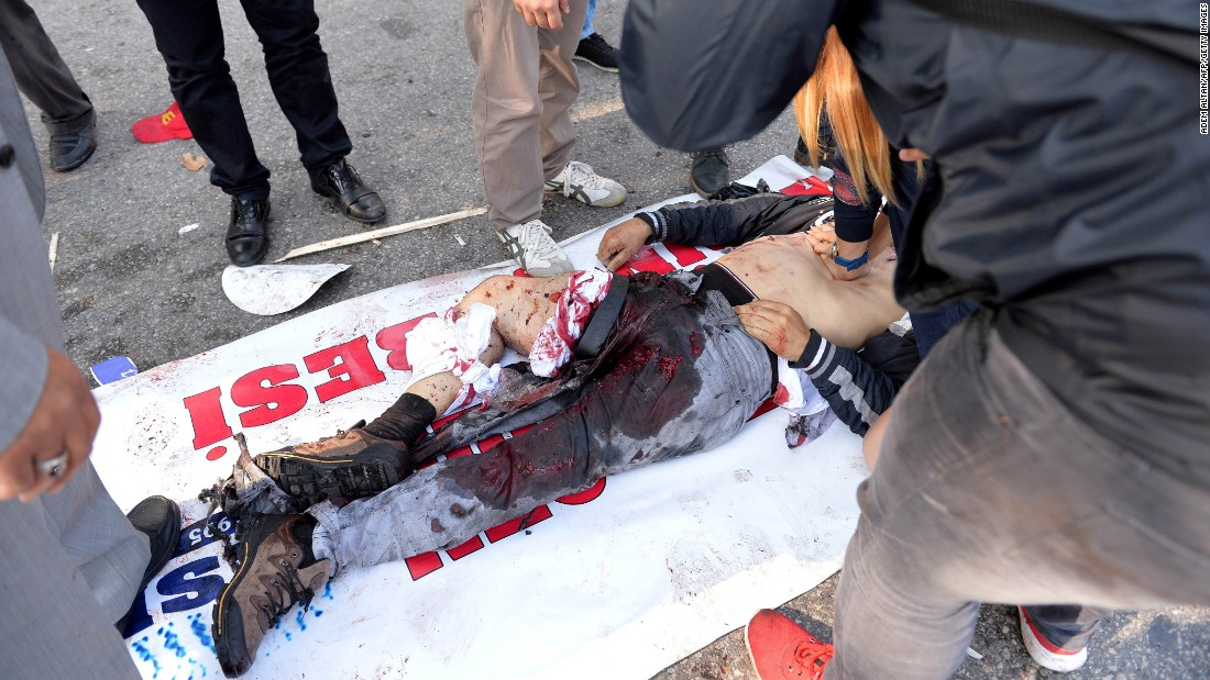A wounded man is treated at the site of the explosion.