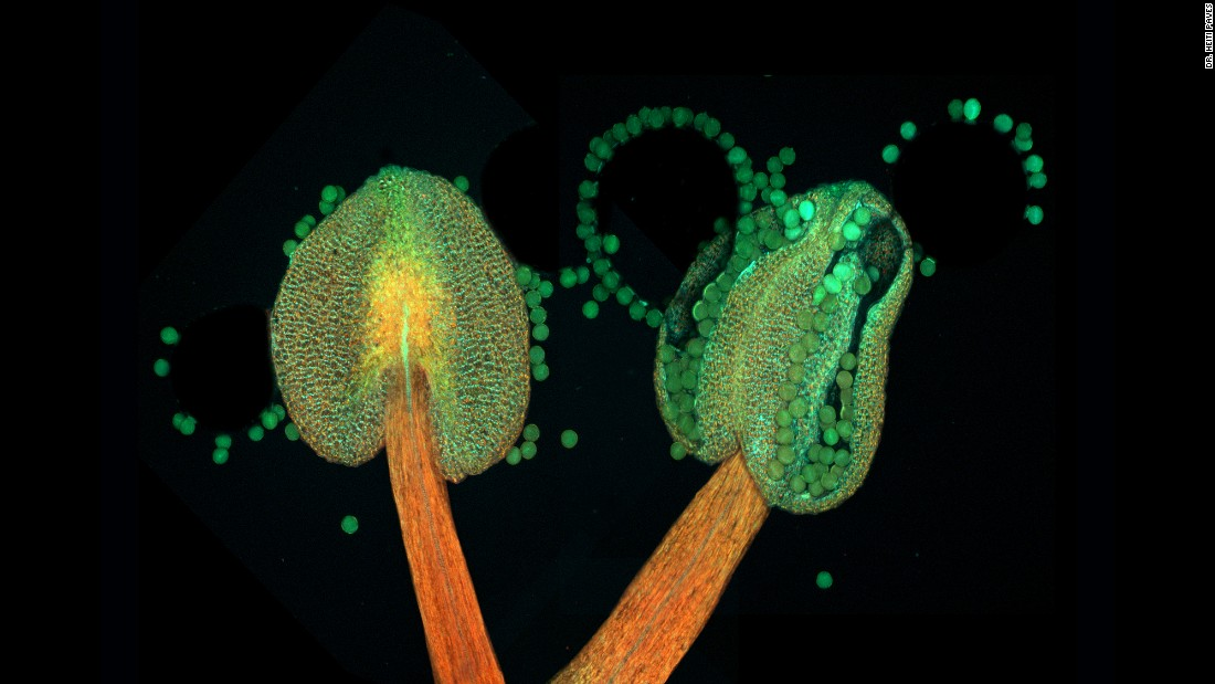 Imagery of anther of a flowering plant (Arabidopsis thaliana), taken at Tallinn University of Technology, Department of Gene Technology in Tallinn, Estonia.