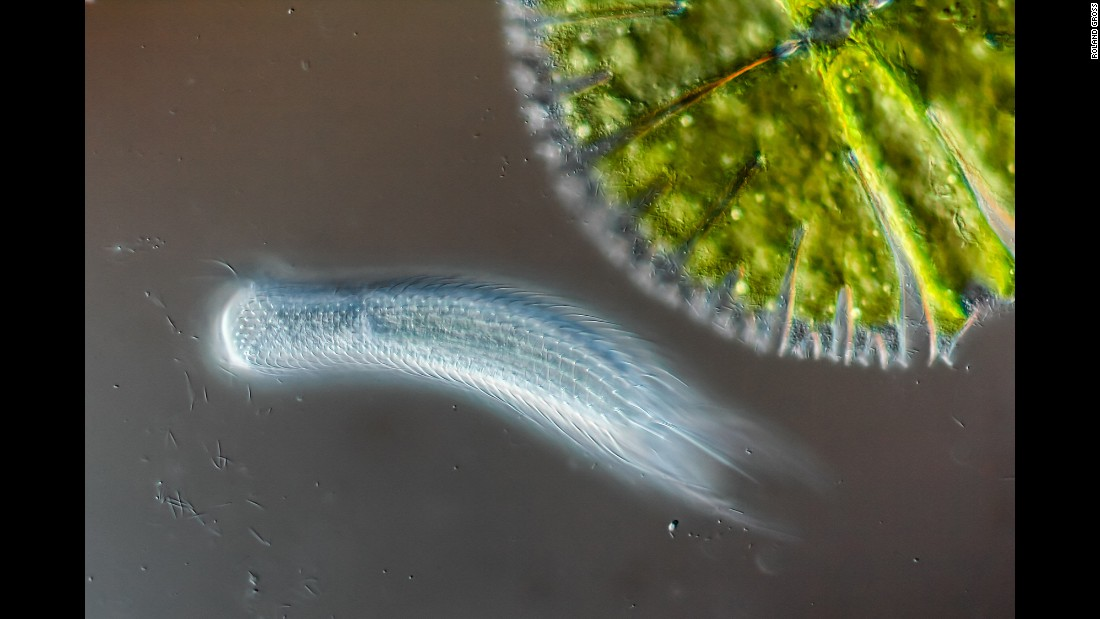 Hairyback worm (Chaetonotus sp.) and algae (Micrasterias sp.), seen under a microscope. Photo taken in Gruenen, Bern in Switzerland.