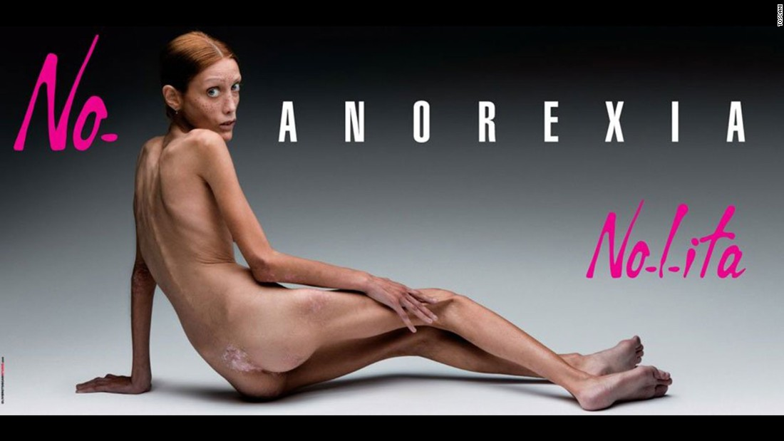 "Called ""No Anorexia"", the 2007 campaign shot by Italian photographer Oliviero Toscani for fashion label Nolita, tackled an extremely challenging subject head on. Backed by the Italian ministry of health, the photo that launched during Milan fashion week and ran in newspapers and on billboards showed a young woman who had fallen victim to the disease. Despite the power behind the ad and the awareness it helped to raise within the fashion industry, the model, Isabelle Caro, tragically died in November 2010. She had made various television appearances and spoken openly about her decision to take part in the campaign. According to an article in the New York Times published after the model's death, Caro had said: ""The ideas was to shock people into awareness, I decided to do it to warn girls about the danger of diets and fashion commandments."" Not everyone agreed with the approach however and the ad was eventually banned by the Italian advertising watchdog organization for agency. <br />"
