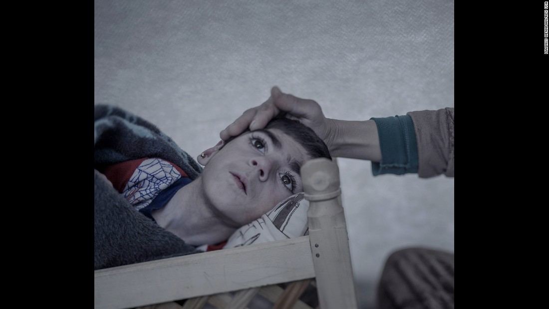 Shiraz, 9, rests at a refugee camp in Suruc, Turkey. She was 3 months old when she was stricken with a severe fever. A doctor diagnosed polio and advised her parents to not spend too much money on medicine. Then the war came. Her mother, Leila, starts crying when she describes how she wrapped her daughter in a blanket and carried her over the border from Kobani, Syria, to Turkey. Shiraz, who can't talk, received a wooden cradle in the refugee camp. She lies there day and night.