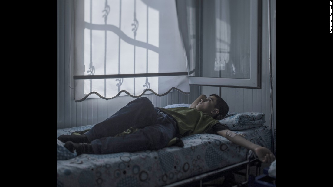 "Mohammed, 13, lies in a hospital bed in Nizip, Turkey. Back home in Aleppo, Syria, he used to enjoy walking around the city looking at houses. Now many of his favorite buildings are gone, blown to pieces. Lying in his bed, Mohammed wonders whether he will ever fulfill his dream of becoming an architect. ""The strangest thing about war is that you get used to feeling scared. I wouldn't have believed that,"" he said."