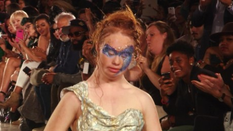 Teen with Down syndrome takes modeling world by storm