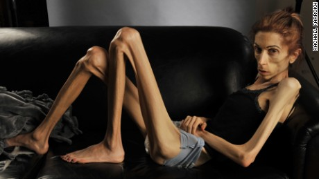 Rachael Farrokh anorexic woman transformation orig vstan_00000817.jpg