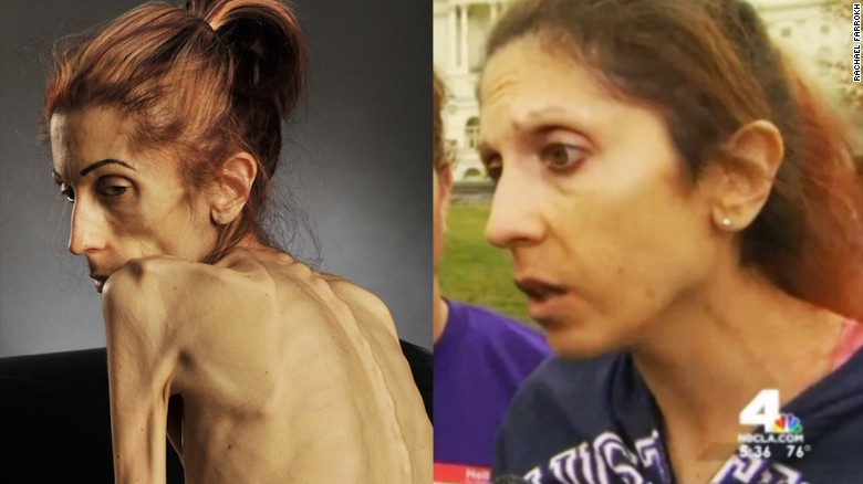 Rachel Farrokh dramatic transformation