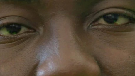 blind student gets vision darrow kivi pkg_00015625