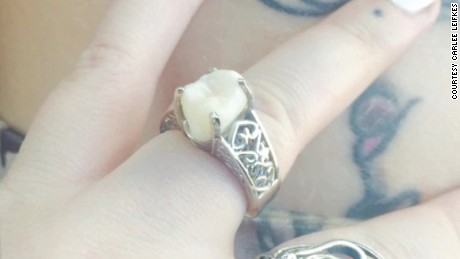 wisdom tooth engagement ring moos pkg erin_00002122