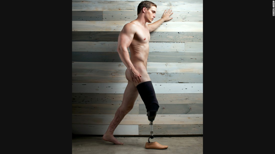 Eric Hunter, a sergeant in the Army, sustained a multitude of injuries and lost his right leg from an IED.