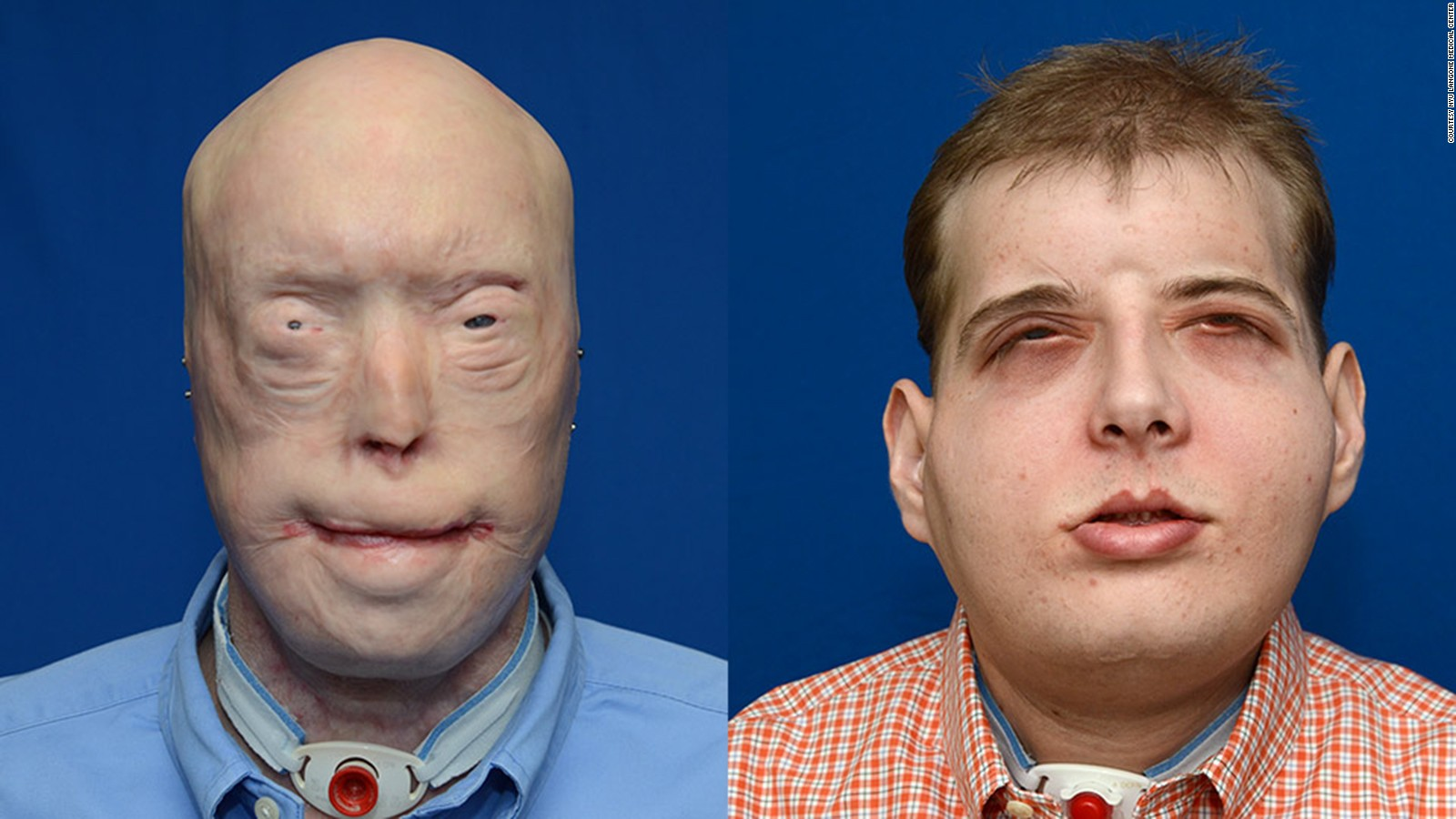 Pictures of facial transplants