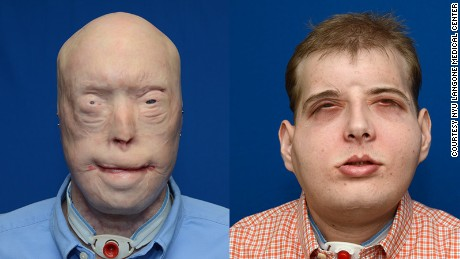 Face transplant surgeon talks 'dramatic transformation'