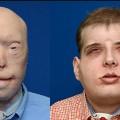 face transplant split hardison