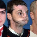 NEW face transplant richard norris