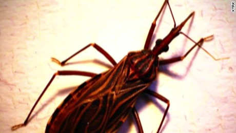 'Kissing bug' could be deadly