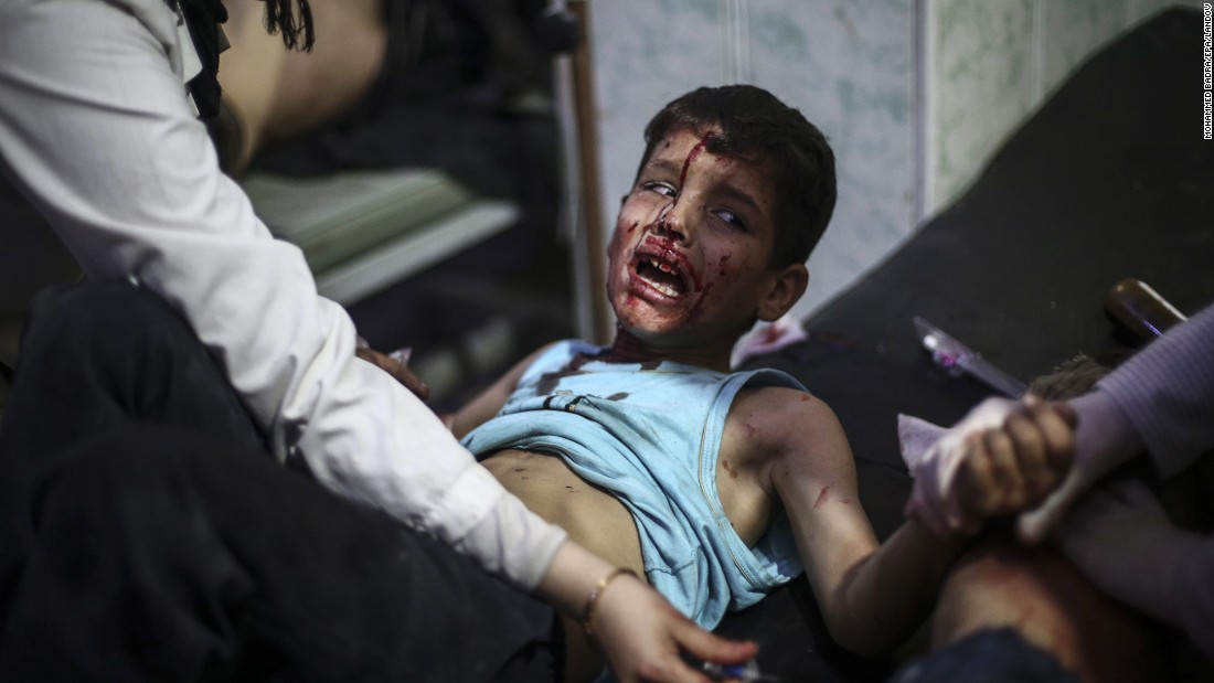 "<strong>October 30: </strong>A boy receives first aid at a field hospital after a reported airstrike in the rebel-held area of Douma, Syria. Local activists said the airstrike came from forces loyal to the regime of President Bashar al-Assad. <a href=""http://www.cnn.com/2015/04/17/middleeast/syria-civil-war-by-the-numbers/"" target=""_blank"">More than 300,000 people have been killed in Syria</a> since civil war began in April 2011."