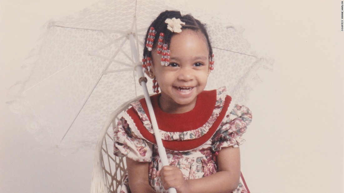 Born Chantelle Brown-Young, at the age of four she was diagnosed with vitiligo -- a skin condition that inhibits pigmentation and creates white patches on the body.